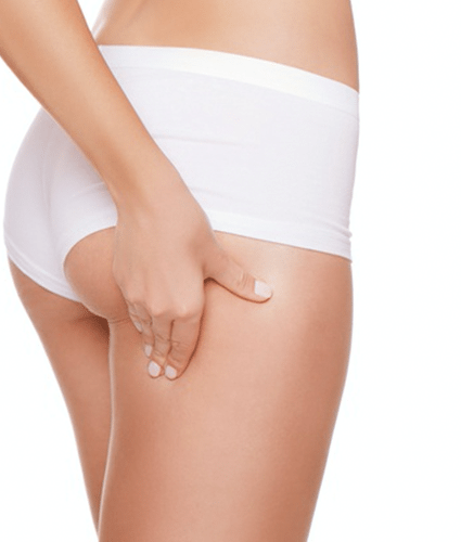 CELLULITE REDUCTION MASSAGE